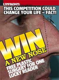 Front magazine UK nose plastic surgery